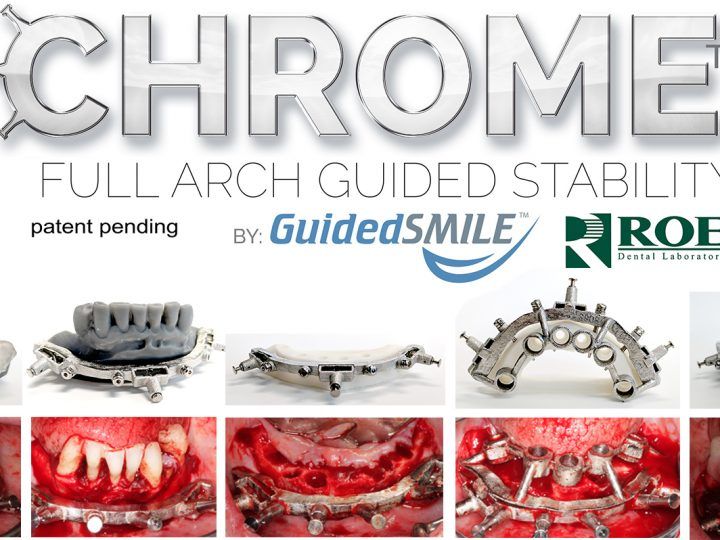 The first CHROME GuidedSMILE LIVE course in Europe